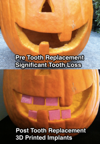 PumpkinTooth1